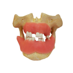 Double maxillary with tooths and gum